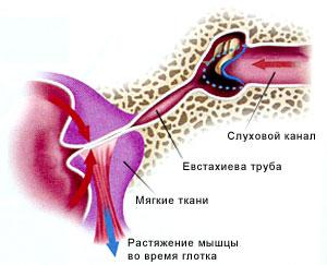 Все методы являются способами открытия евстахиевых труб