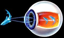 Рис.6 - При миопии или близорукости четкое изображение строится перед сетчаткой глаза